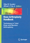Scuderi G.R., Tria A.J. — Knee Arthroplasty Handbook: Techniques in Total Knee and Revision Arthroplasty