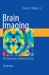 Wagner H.N. — Brain Imaging: The Chemistry of Mental Activity